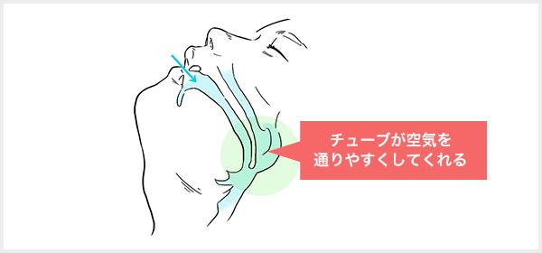 ナステントとは鼻からシリコン製のやわらかいチューブを入る
